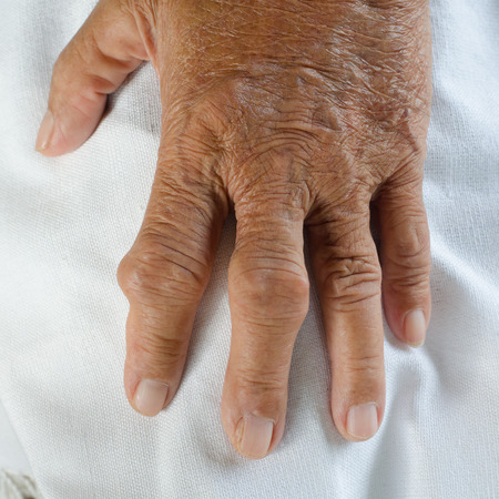 30502818 - fingers of patients with gout