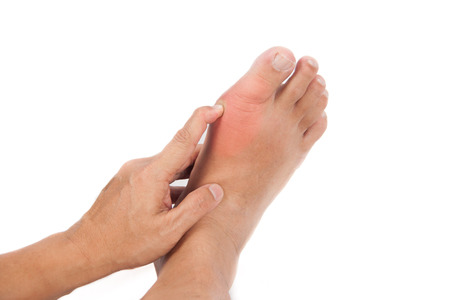 34515084 - finger pressing on gout inflamed part of foot