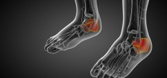 3d render medical illustration of the calcaneus bone